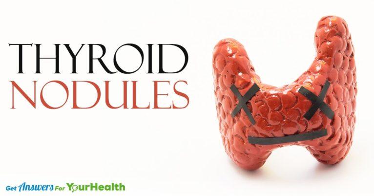 thyroid-nodules